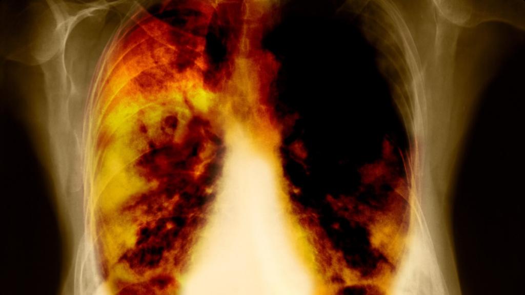 rak płuc zachorowalność na raka w Płocku